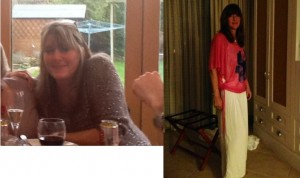 kate before and after bristol